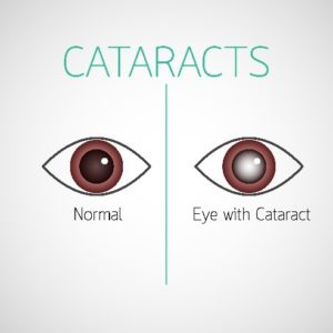 Cataracts Treatment Wilmington, NC